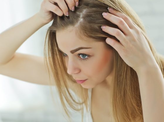 Why Dandruff Should Not Be Considered